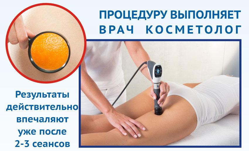 УВТ для профилактики целлюлита