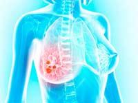 Прием онколога-маммолога