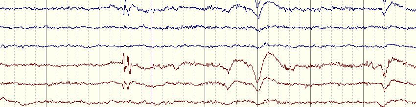 Сделать электроэнцефалограмму в Гатчине